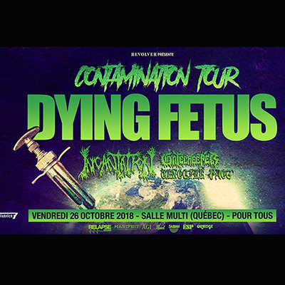 2018_10_26_District7_Dying_fetus